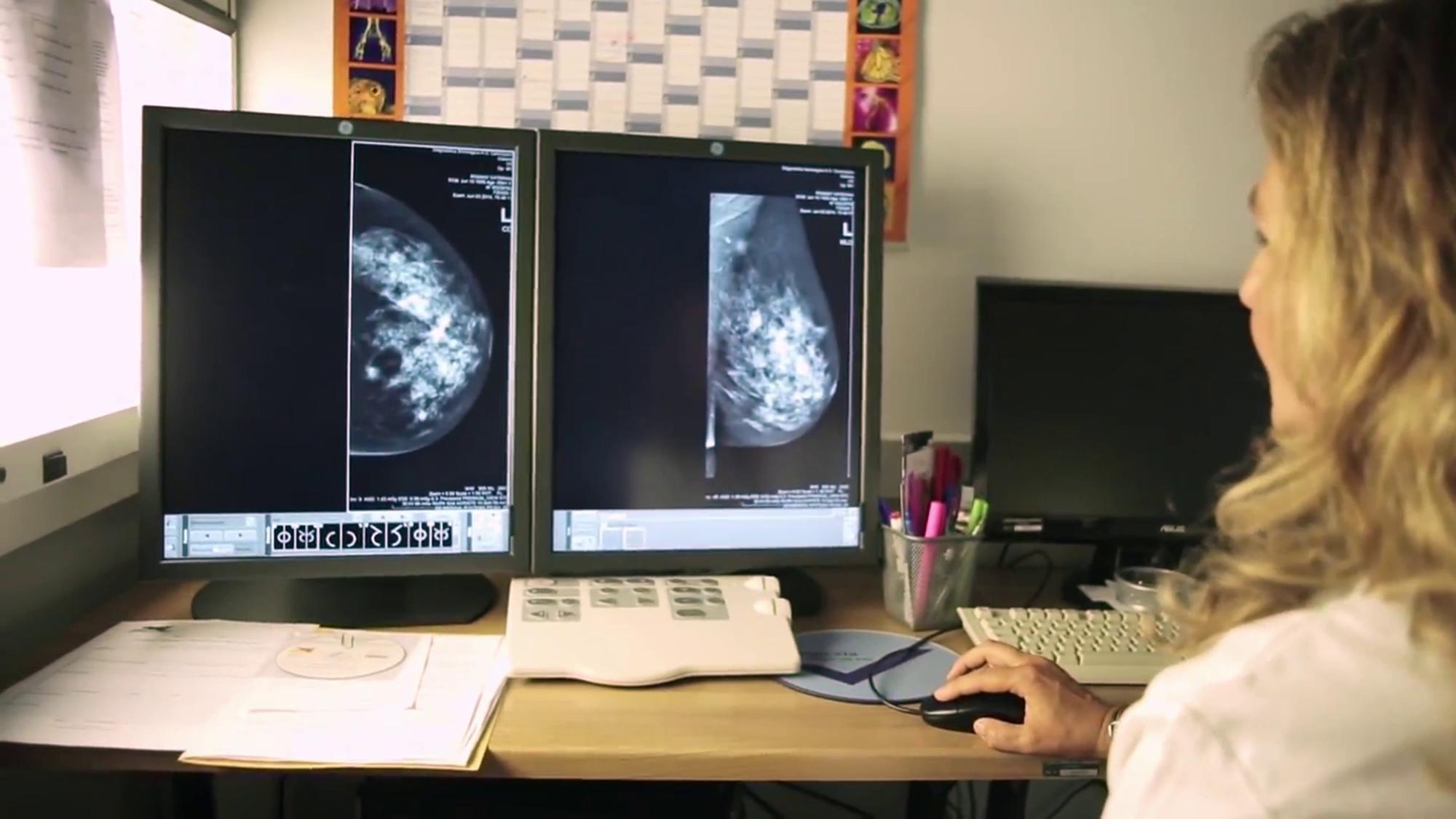 (Video) Salute, a Siracusa presente le Breast Unit delle rete senologica